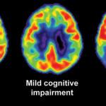 Διαγνωστικό τεστ θα προβλέπει τη νόσο Αλτσχάιμερ μια δεκαετία πριν εκδηλωθεί