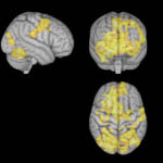 Η δραστηριότητα του εγκεφάλου ήταν εντονότερη όταν το άτομο άφηνε τις σκέψεις του ελεύθερες παρά όταν συγκεντρωνόταν σε κάτι.